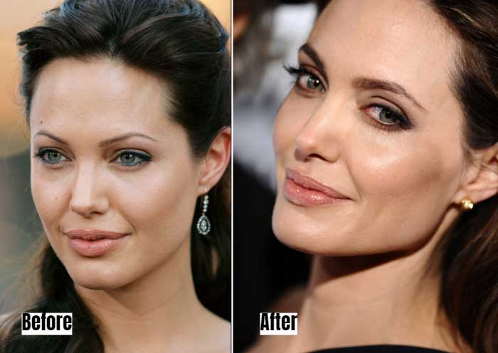 Angelina Jolie Before and After Microblading Eyebrows