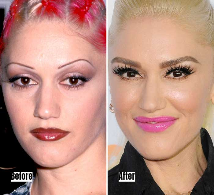 Gwen Stefani Before and After Microblading Eyebrows
