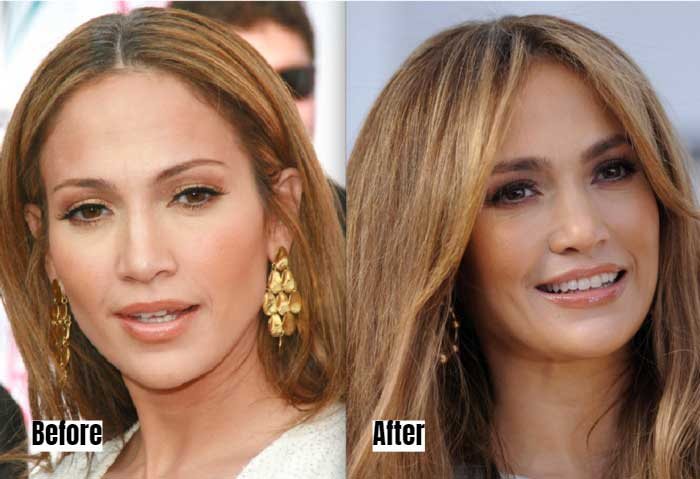 Jennifer Lopez Before and After Microbladed Eyebrows
