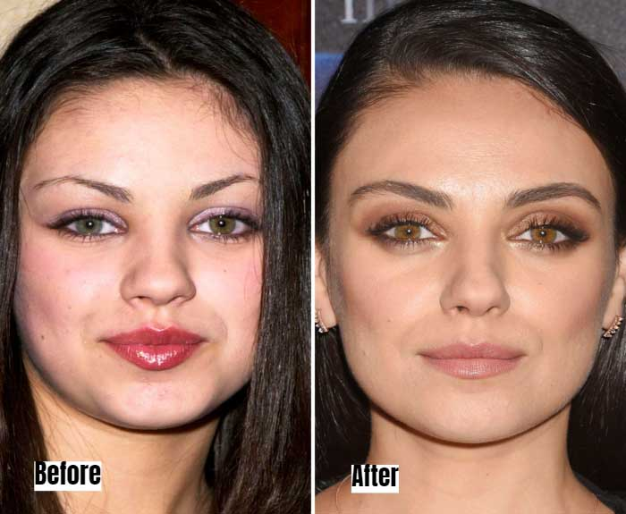Mila Kunis Before and After Microbladed Eyebrows