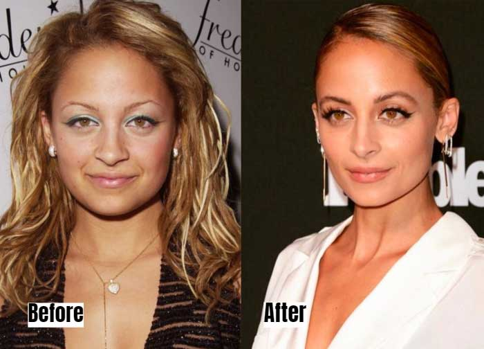 Nicole Richie Before and After Microblading Eyebrows